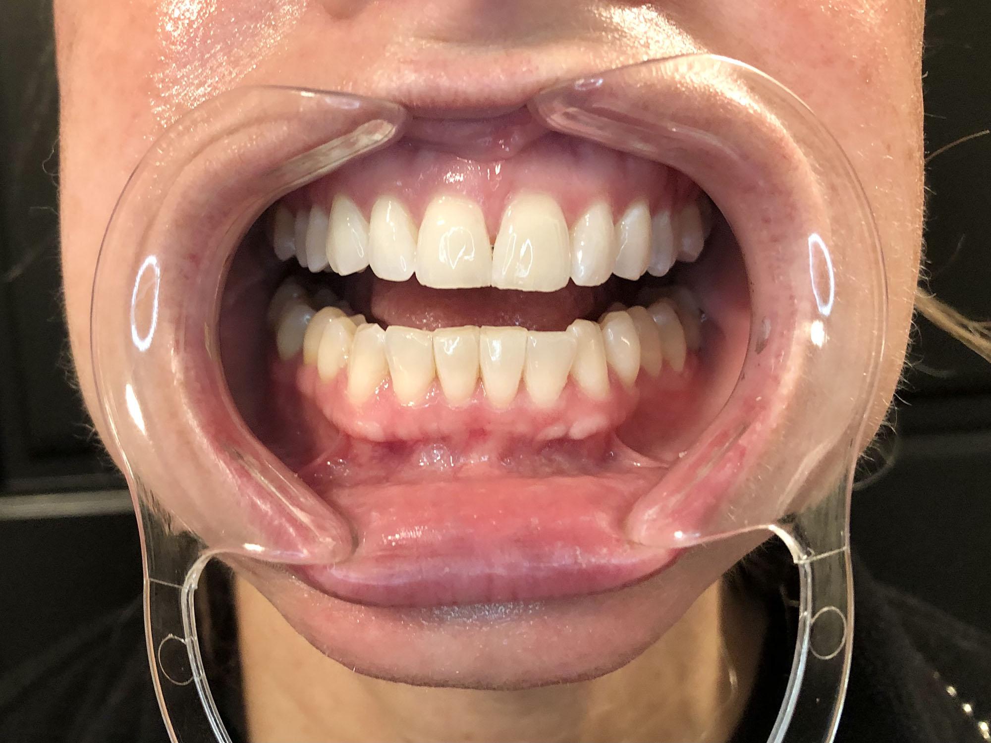 teeth-before
